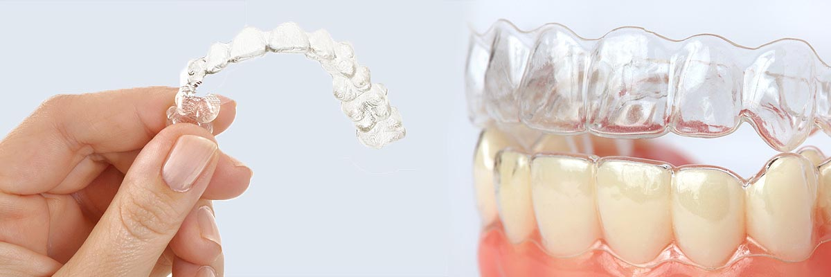Port Chester Alternative to Braces for Teens