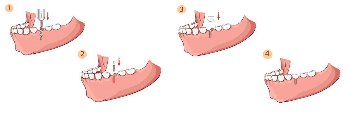 Port Chester The Dental Implant Procedure