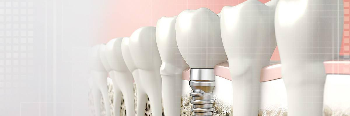 Port Chester Dental Prosthetics