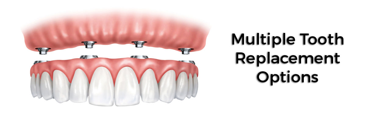 Port Chester Multiple Teeth Replacement Options