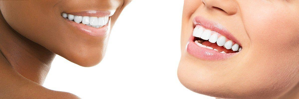Port Chester Dental Restoration