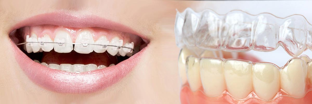 Port Chester Which is Better Invisalign or Braces